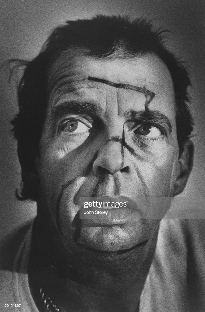 Portrait of TV talk show host Morton Downey, Jr. w. backwards swastika on his face, allegedly put there by a crazed skinhead.