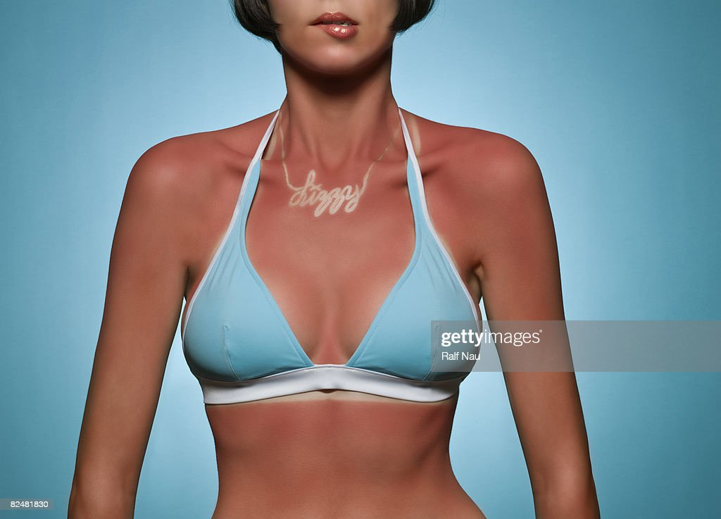 Portrait of woman with sunburn : Stock Photo