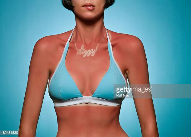 Portrait of woman with sunburn