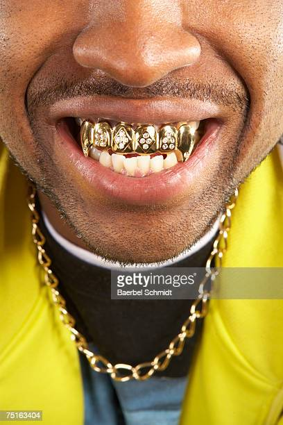Portrait of young man with gold teeth, close-up
