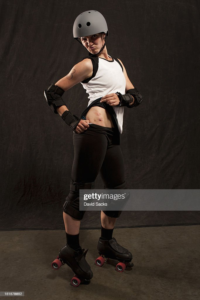 portrait of young woman with injuries : Stock Photo