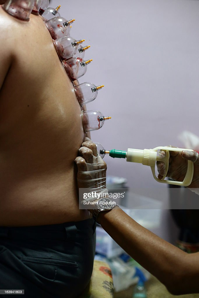 A practitioner fixes a cup on a patient's back during a blood cupping session on March 18, 2013 in Singapore. Cupping therapy dates back to ancient Chinese, Egyptian and Middle Eastern cultures and is used to treat a variety of medical conditions ranging from skin problems, blood disorders, fertility disorders and stroke. The process involves pricking the skin with needles before immediately applying a cup on top to draw congealed blood. Although the treatment is used widely throughout Asia and the Middle East, western medical groups remain sceptical of the health claims made by supporters and practitioners of the therapy.