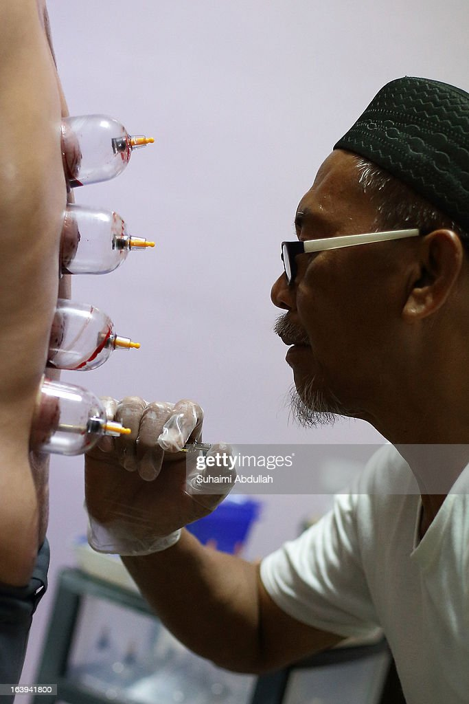 A practitioner pricks the lower back of the patient's skin with a needle during a blood cupping session on March 18, 2013 in Singapore. Cupping therapy dates back to ancient Chinese, Egyptian and Middle Eastern cultures and is used to treat a variety of medical conditions ranging from skin problems, blood disorders, fertility disorders and stroke. The process involves pricking the skin with needles before immediately applying a cup on top to draw congealed blood. Although the treatment is used widely throughout Asia and the Middle East, western medical groups remain sceptical of the health claims made by supporters and practitioners of the therapy.