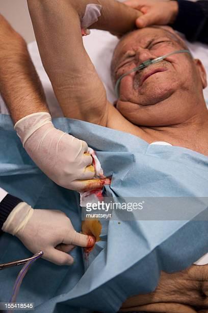 praparin to insert a chest tube