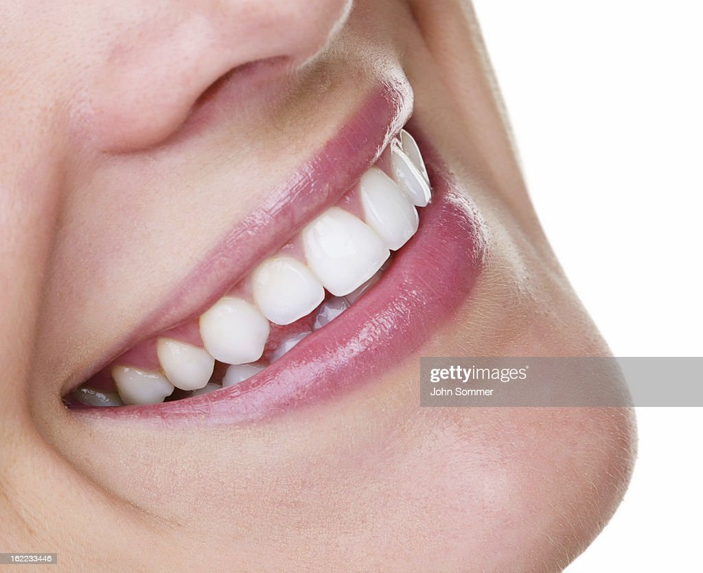 Prefect teeth
