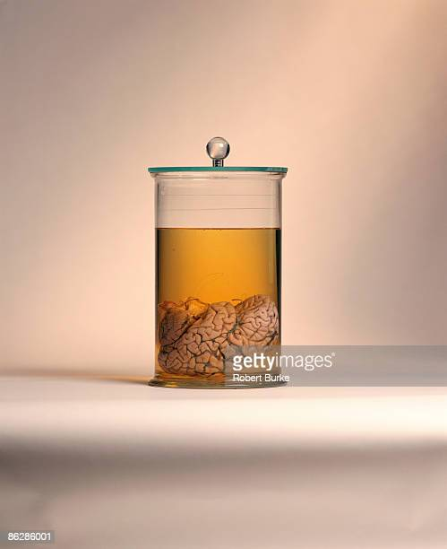A preserved human brain in a glass canister