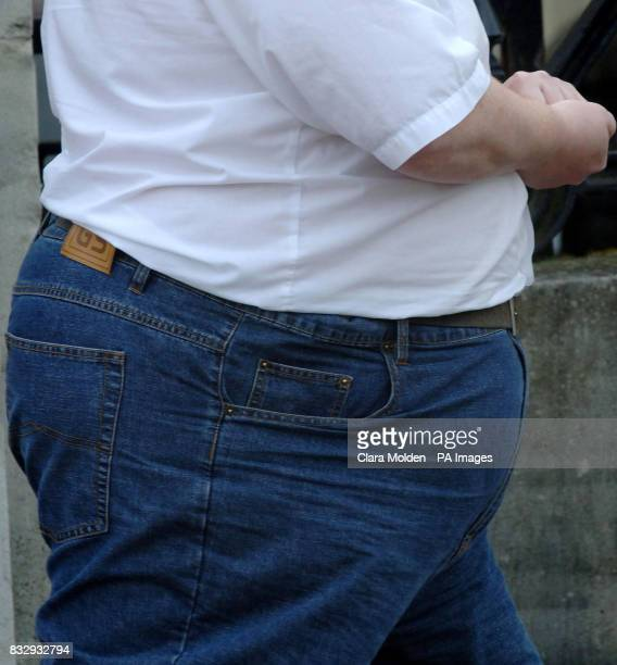 Previously unissued photo dated 120307 of the stomach of an obese man in Reading A common gene variant found in 16% of the population could be...