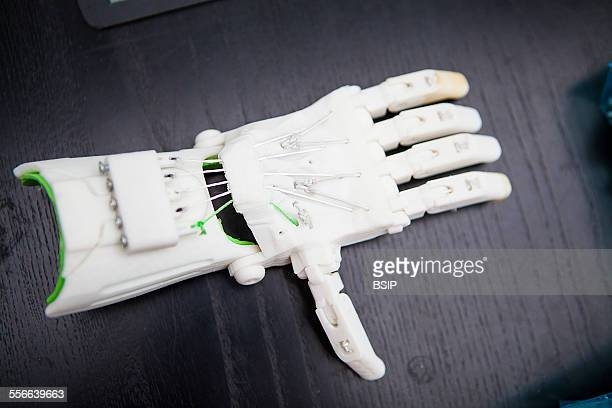 3D Printing ENable Prosthetics Enable project puts volunteers with a 3D printers in touch with handicapped children who need a hand prosthesis...