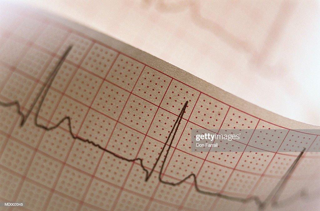 EKG Printout : Foto stock