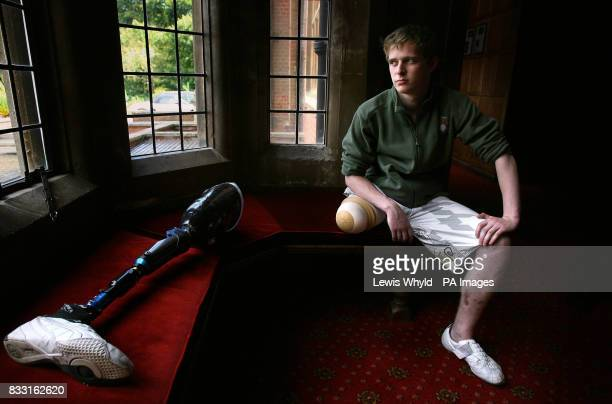 Private Chris Herbert of the Yorkshire Territorial Army sits next to his prosthetic leg at the Defence Medical Rehabilitation Centre at Headley Court...