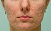 Frontal view of girl's cheeks and chin with acne scars