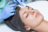 procedure Plasmolifting injection. plasma injection into the skin of the forehead of the patient