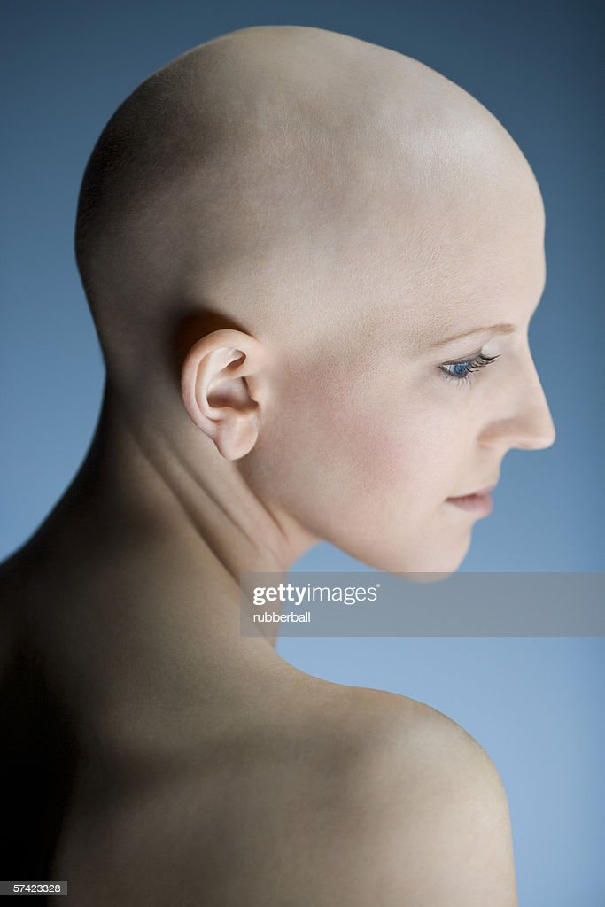 Profile of a bald young woman thinking
