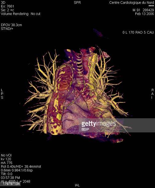 Pulmonary Artery 3D Scan Angiography Scanner 3D Visualization Of The Heart Trachea And Pulmonary Vascularization Arteries And Arterioles Veins And...