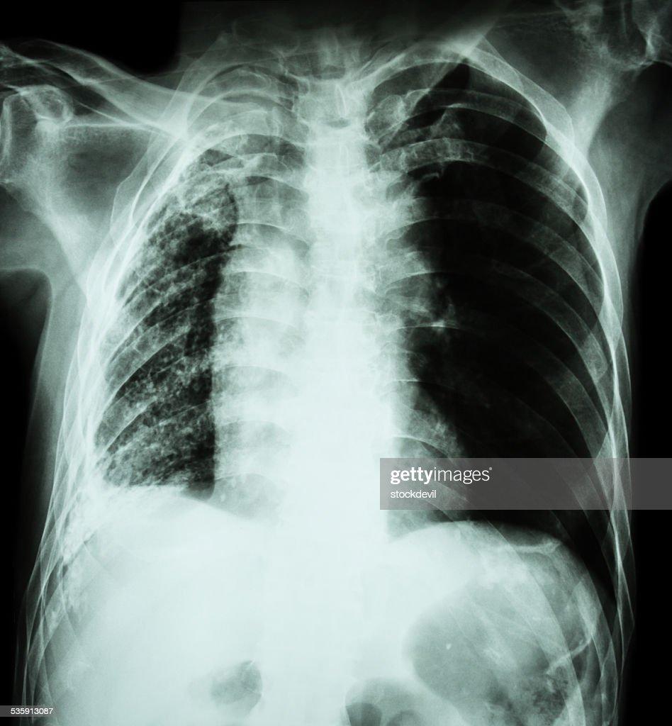 Tuberculosis pulmonar. Radiografía de tórax: Pulmón derecho de atelectasia : Foto de stock