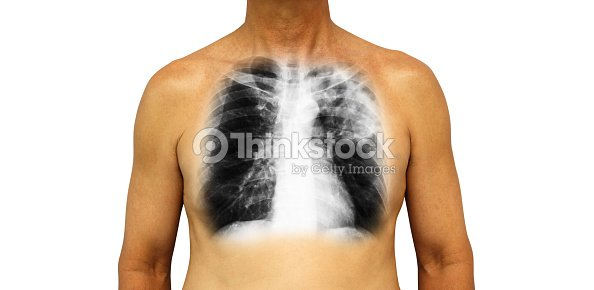 Lungentuberkulose Menschliche Brust Mit Xray Show Lückenhaft ...