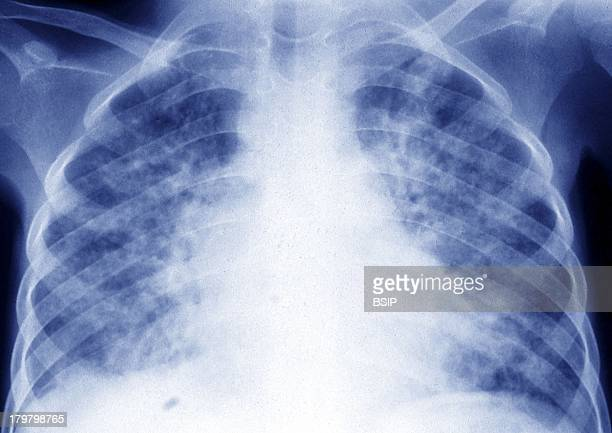 Pulmonary Tuberculosis XRay Spreading Through The Two Lungs Of A Child Thoracic XRay