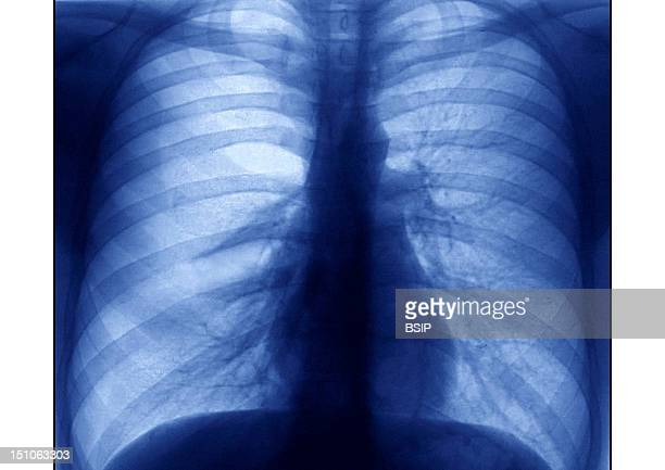 Pulmonary X Ray Undertaken During An Allergic Asthma Crisis