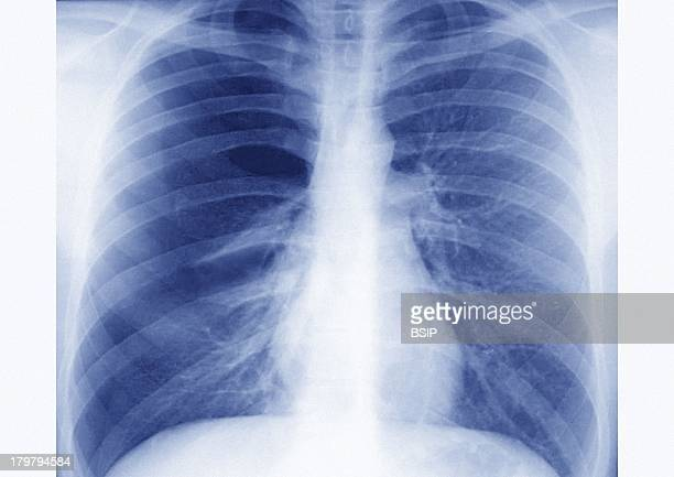 Pulmonary XRay taken During An Allergic Asthma Crisis