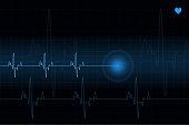 Heart pulse trace