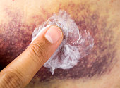 Cropped image of a young woman putting moisturizer onto her finger on a great haematoma