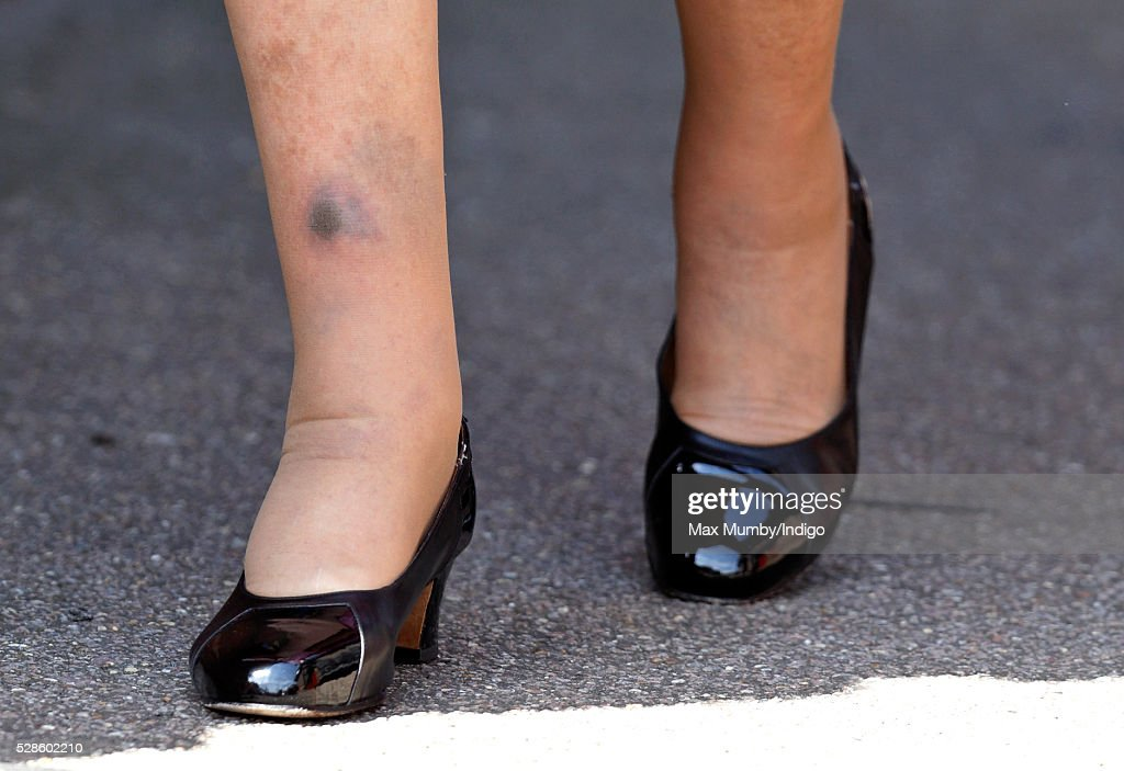 Queen <a gi-track='captionPersonalityLinkClicked' href=/galleries/search?phrase=Elizabeth+II&family=editorial&specificpeople=67226 ng-click='$event.stopPropagation()'>Elizabeth II</a> (seen with a bruise on her right shin) visits Berkhamsted School on the occasion of the 475th Anniversary of its foundation on May 6, 2016 in Berkhamsted, England.