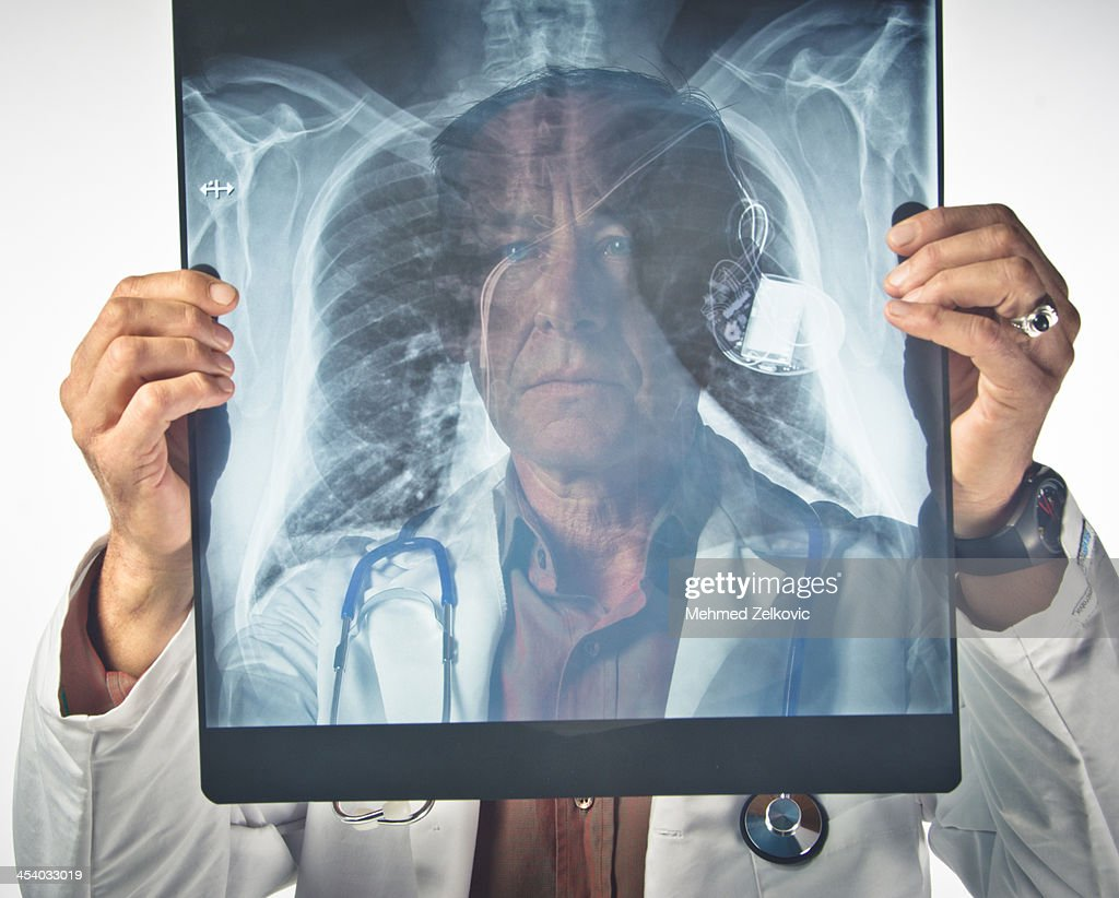 Radiologist examining chest X-ray with pacemaker