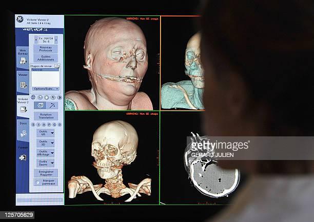 'A MARSEILLE DES AUTOPSIES VIRTUELLES AU SERVICE DE LA JUSTICE ET LA SANTE' A radiologist looks at the scans of a reconstituted corpse in 3D in order...