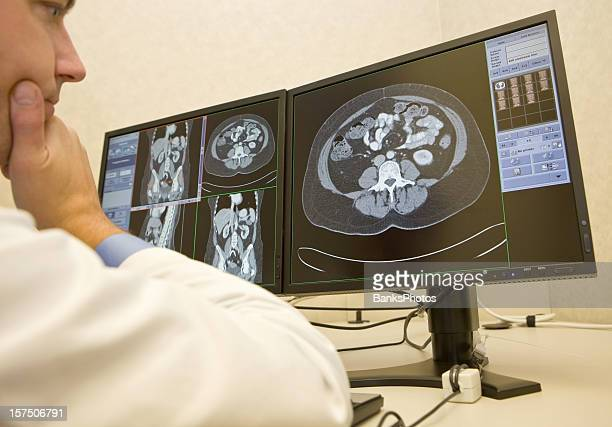 Radiologist Reviews CAT Scans on Monitors