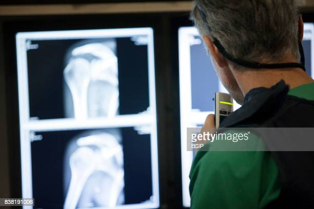Radiology center France dictates the results of a collarbone xray