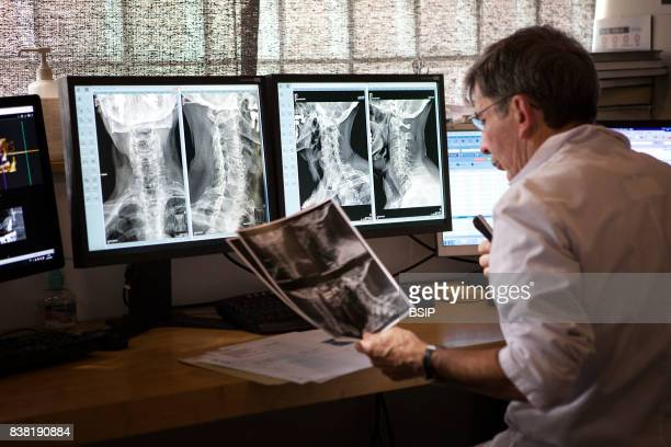 Radiology center France radiologist prepares a report for an xray showing cervical osteoarthritis