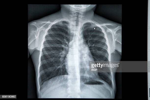 Radiology center in HauteSavoie France The results of a childÕs pulmonary xray the results are normal