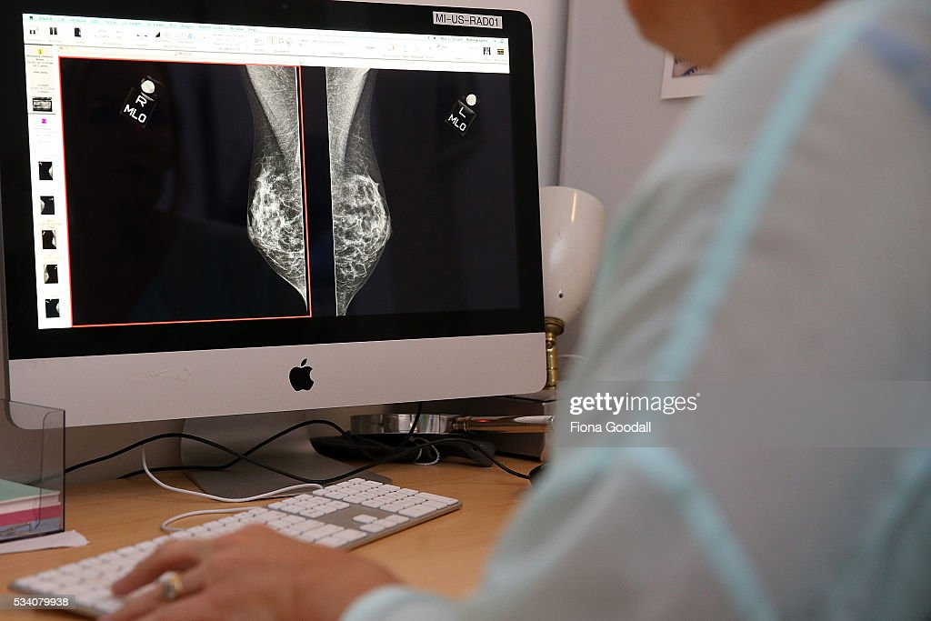 Radiology equipment in action at Ascot Radiology at the Millenium Institutute of Sport and Recreation, on May 25, 2016 in Auckland, New Zealand. Health and Education are expected to get boost in tomorrow's Budget 2016 announcement.