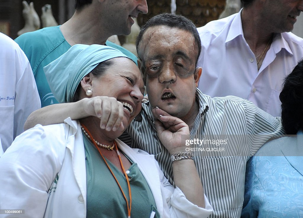 Rafael (R) hugs a nurse after undergoing a face transplant at Sevilla's Hospital Virgen del Rocio on May 4, 2010 in Sevilla. The second patient to have undergone a face transplant in Spain appeared before the media to thank the family of the donor for making the surgery possible before leaving the hospital. Rafael suffers from neurofibromatosis, a genetically inherited disorder in which the nerve tissue grows tumours which had severely disfigured his face.