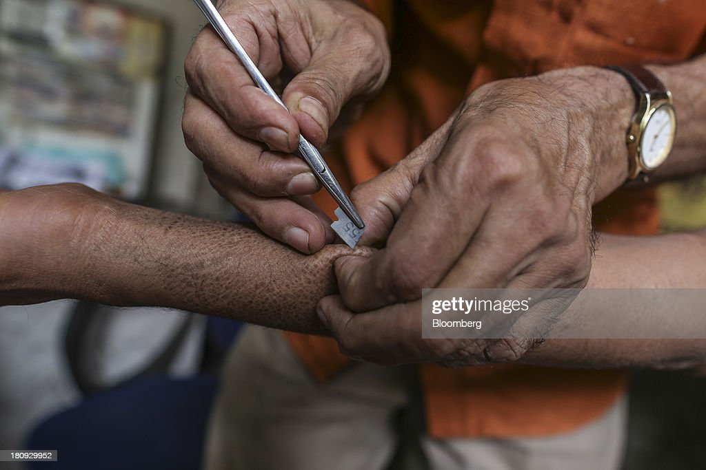 D. V. Raja, a paramedical worker for the Bombay Leprosy Project (BLP), takes a skin sample from a patient for a smear test at the organization's referral center in Mumbai, India, on Tuesday, Sept. 10, 2013. While leprosy, described in Indian texts from the 6th century BC, has been cleared from the developed world, its regaining ground in India, which has become the biggest source of cases imported into the U.K. and Australia. Photographer: Dhiraj Singh/Bloomberg via Getty Images