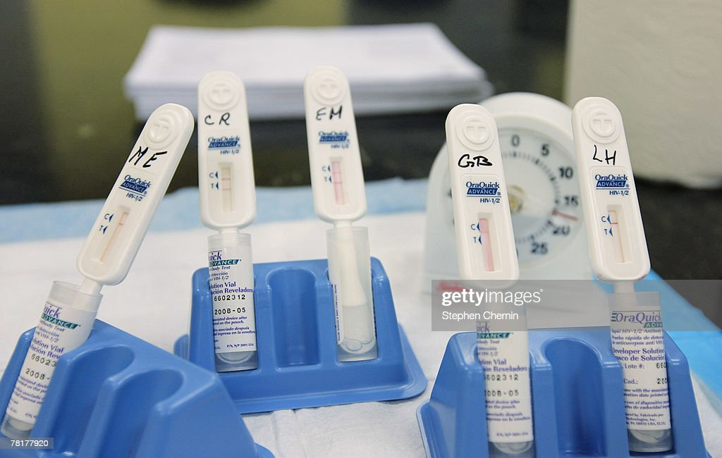 Rapid HIV test swabs rest in their holders incubating at the Iris House November 30 2007 in New York CItyThe World Health Organization who started...