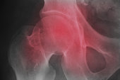 X ray film on red filter medical science background.