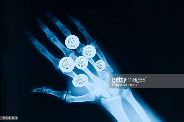 X ray of a hand with euros