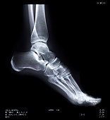 X ray of human ankle