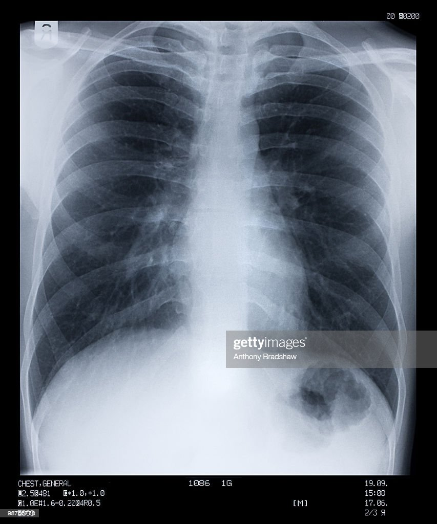 X ray of human chest : Stock Photo