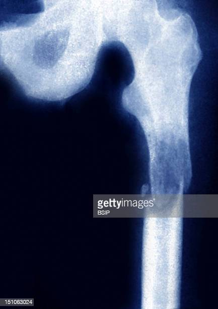 X Ray Of The Left Leg In Front View Fracture Of The Thighbone At The Level Of A Secondary Carcinoma Following A Primary Cancer Of The Kidney On The X...