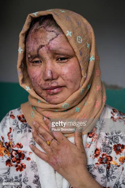 Razia Noorizada Didar was one of the seriously wounded victims that worked with Tolo for a decade Razia has a lost sight in her left eye and has...