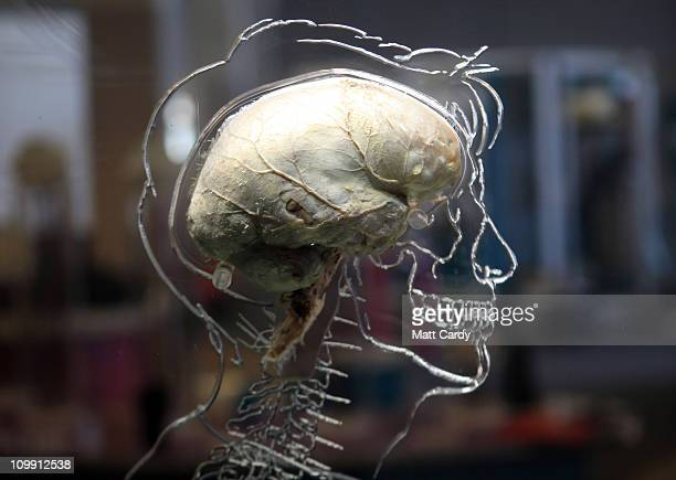 A real human brain being displayed as part of new exhibition at the @Bristol attraction is seen on March 8 2011 in Bristol England The Real Brain...