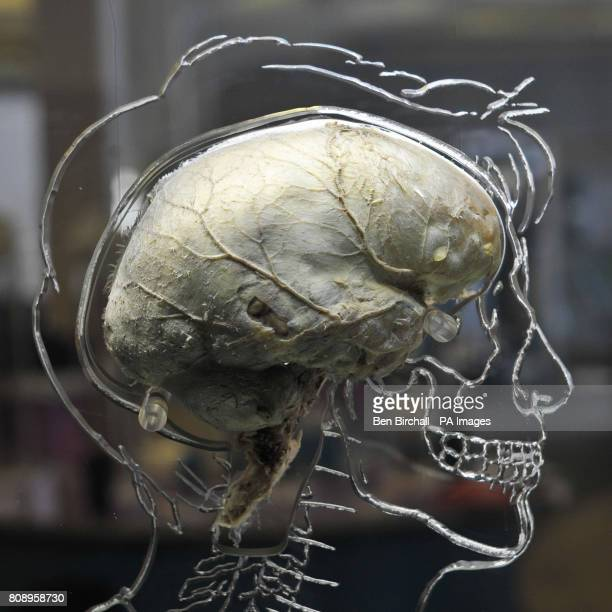 A real human brain suspended in liquid with a toscale skeleton central nervous system and human silhouette carved into acrylic inside the @Bristol...