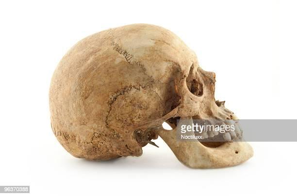 Real perfil de cráneo humano