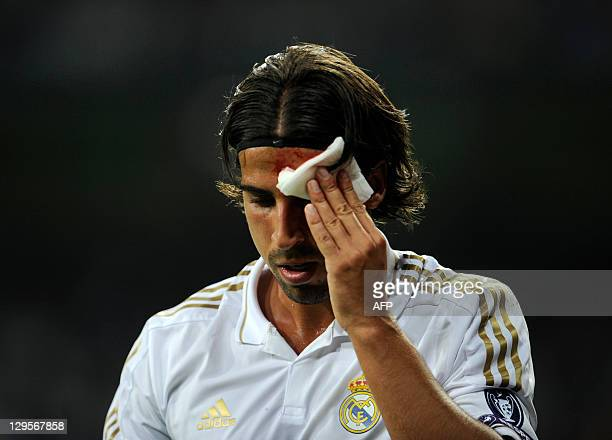 Real Madrid's German midfielder Sami Khedira touches his bleeding face during the Champions League ootball match between Real Madrid and Olympique...