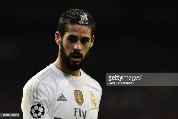 Real Madrid's midfielder Isco looks on with a bleeding injury to his head during the UEFA Champions League football match Real Madrid CF vs Paris...