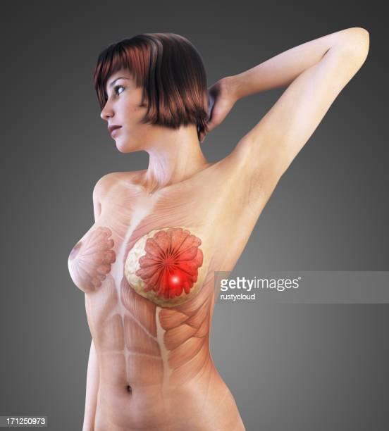 Breast Brustkrebs