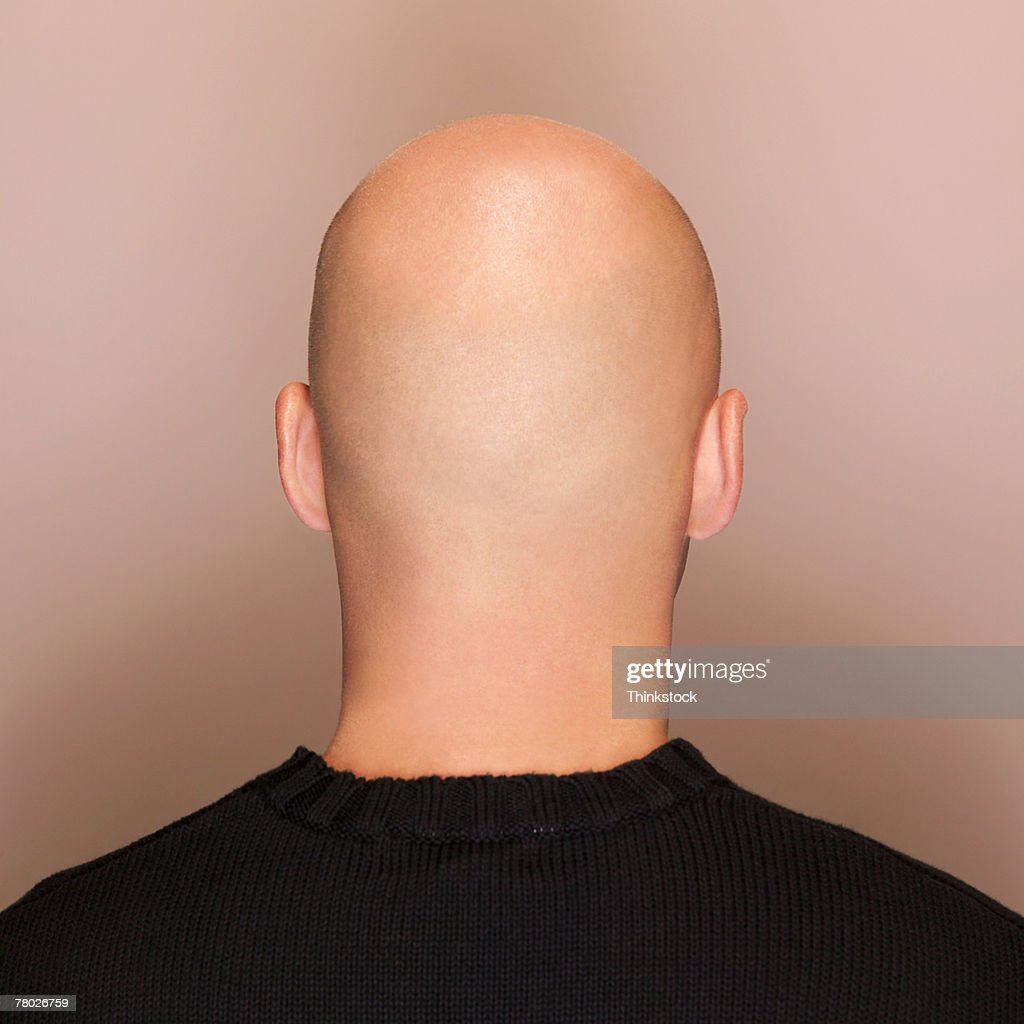 Rear view headshot of a man's bald head.