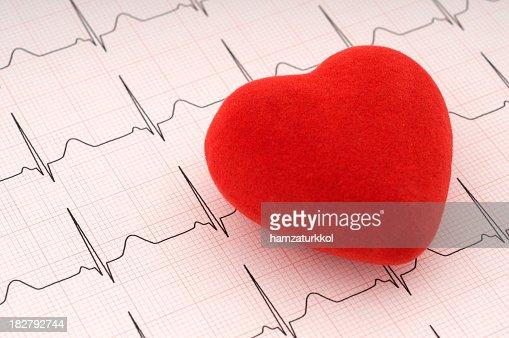 Red felt heart on ECG printout